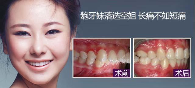 【真人案例】矫正牙齿